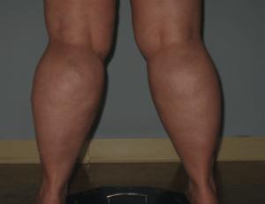 fat calves are not small calves