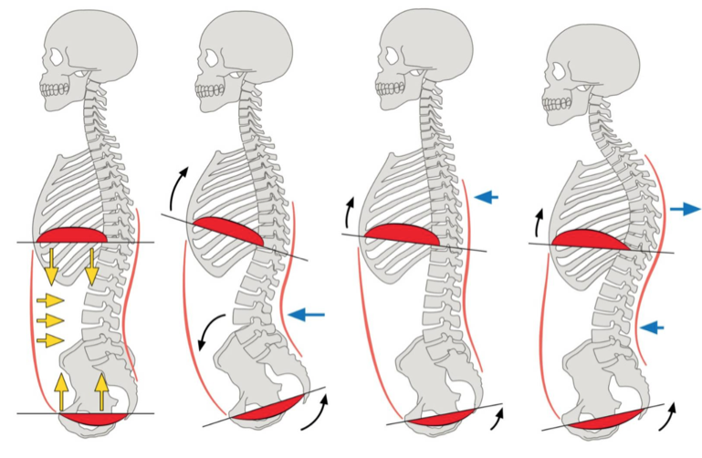 Not Bracing is another mistake that people should avoid when doing the T Bar Exercise
