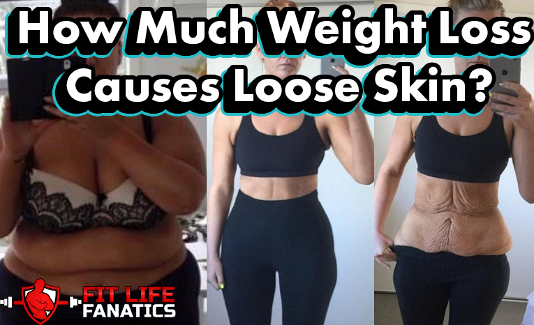 How Much Weight Loss Causes Loose Skin