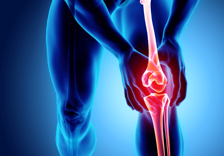 A pre-existing knee injury can cause pain when running on a treadmill