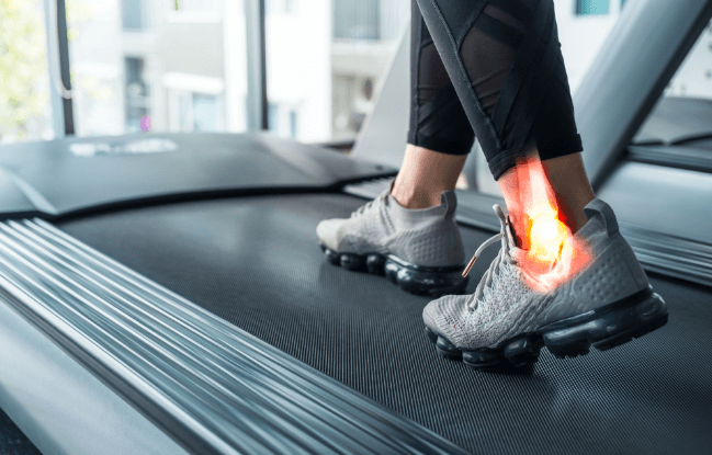 If you have poor ankle mobility, running may be painful